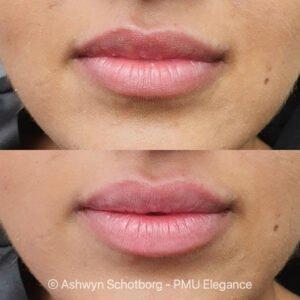 Lip behandeling